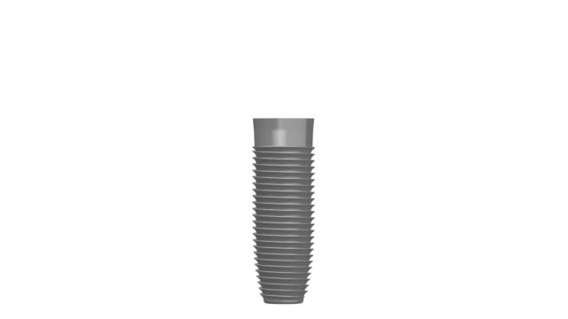 3 d 歯科インプラント/歯のインプラント - 歯科点の映像素材/bロール