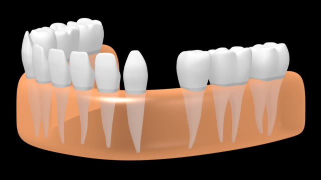 3D dental implant/ tooth implant video