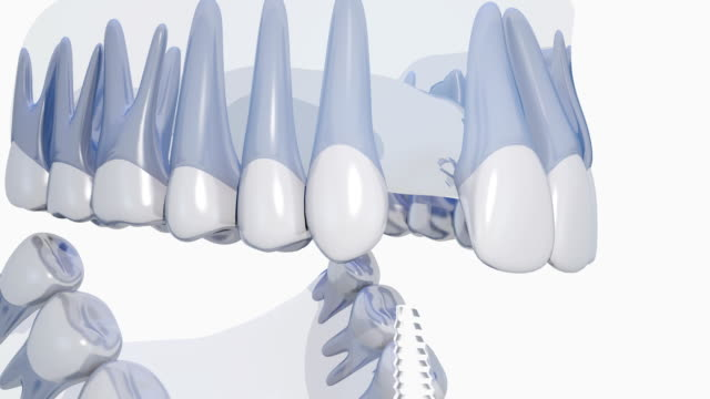 Dental implant Tooth implantation 3d implant stock videos & royalty-free footage