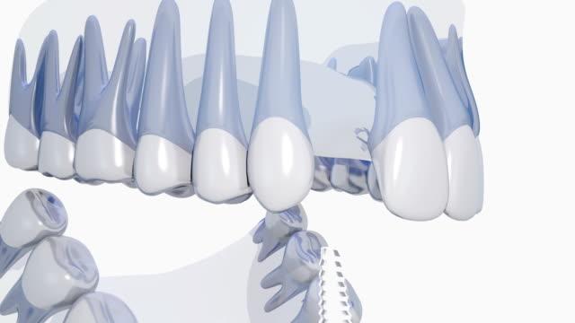 vídeos de stock e filmes b-roll de dental implant - dentes