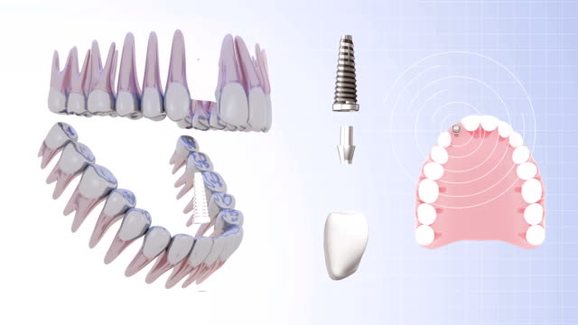 Dental implant Dental implant implant stock videos & royalty-free footage