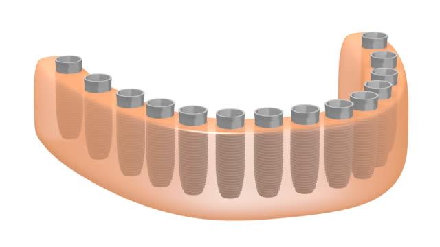 3 d 歯科インプラント/歯インプラント - 歯科点の映像素材/bロール