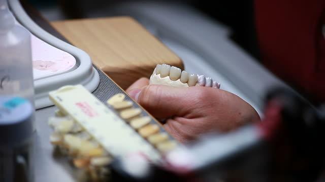 Dental implants video