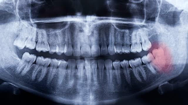 stockvideo's en b-roll-footage met tandheelkundige panoramisch x-ray - medische röntgenfoto