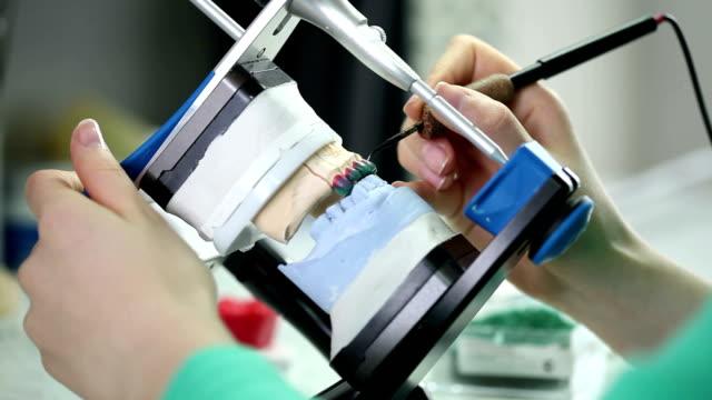 Dental prosthesis video