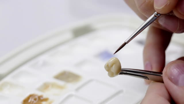 Dental technician working on a tooth crown video