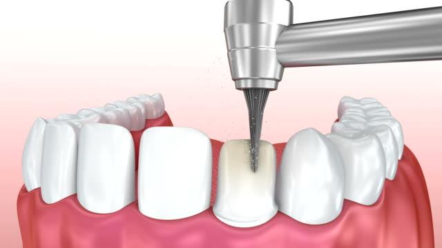 vídeos y material grabado en eventos de stock de chapas dentales: procedimiento de instalación de chapa de porcelana. animación 3d - porcelana china