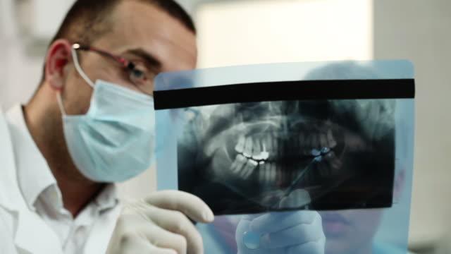 dental x-ray - two dentists talking bildbanksvideor och videomaterial från bakom kulisserna