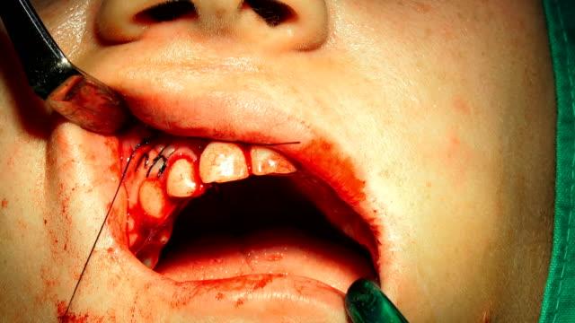 ameliyathanenin yarasını dikiş için diş hekimi doktor tutan iğne tutucu - sütür eklem stok videoları ve detay görüntü çekimi