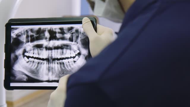 tandläkare som förklarar röntgen till äldre patient - two dentists talking bildbanksvideor och videomaterial från bakom kulisserna