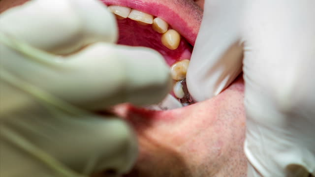 HD: Dentist injects anesthetic into dental patient's gum HD1920x1080: High quality produced HD Stock Footage Clip of Dentist is mending client's teeth using his tools and assistant's help jerky stock videos & royalty-free footage