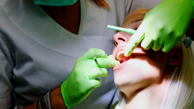 Dentista intervención - vídeo