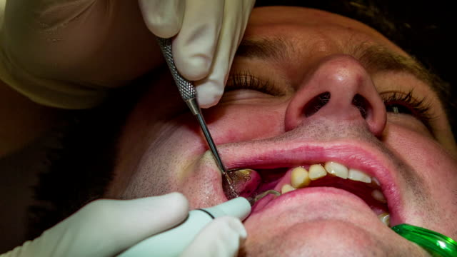 HD: Dentist is washing out client's upper teeth HD1920x1080: High quality produced HD Stock Footage Clip of Dentist is mending client's teeth using his tools and assistant's help jerky stock videos & royalty-free footage