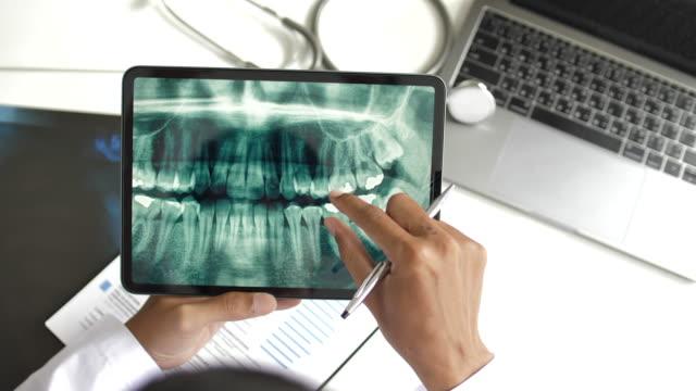 diş hekimi dijital tablet üzerinde insan dişleri x-ray bakıyor, top view - diş sağlığı stok videoları ve detay görüntü çekimi