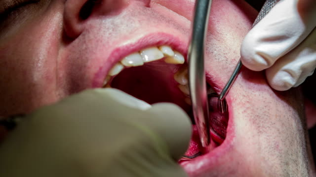 HD: Dentist making jerky moves while mending patient's lower row HD1920x1080: High quality produced HD Stock Footage Clip of Dentist is mending client's teeth using his tools and assistant's help jerky stock videos & royalty-free footage
