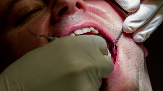 HD: Dentist making jerky moves while mending patient's lower teeth HD1920x1080: High quality produced HD Stock Footage Clip of Dentist is mending client's teeth using his tools and assistant's help jerky stock videos & royalty-free footage