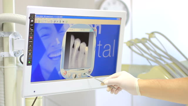 Dentist monitor - Doctor shows your patient the situation of his teeth video