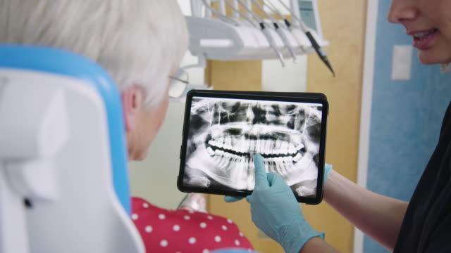 tandläkare som visar testresultat till senior patient - two dentists talking bildbanksvideor och videomaterial från bakom kulisserna