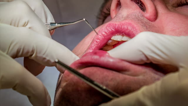 HD: Dentist using mirror and tool to check patient's teeth HD1920x1080: High quality produced HD Stock Footage Clip of Dentist is mending client's teeth using his tools and assistant's help. Dentist is using a mirror and a tool to check vitality of patient's teeth jerky stock videos & royalty-free footage