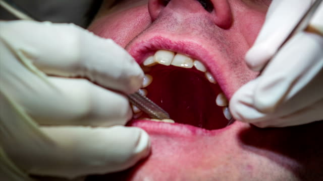HD: Dentist using tools to check health in patients teeth HD1920x1080: High quality produced HD Stock Footage Clip of Dentist is mending client's teeth using his tools and assistant's help. Dentist using his tools to check health and possibly intervene in patients teeth jerky stock videos & royalty-free footage