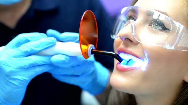 Dentist Using Ultraviolet Lamp Dentist using ultraviolet lamp on a female patient implant stock videos & royalty-free footage
