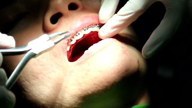 Dentista trabajando en el hospital (orthodontics tratamiento) - vídeo