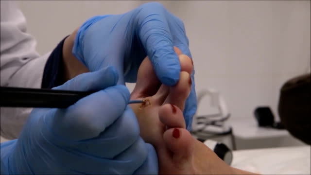 Dermatologist Surgeon Uses The Electrocautery To Cauterize The Wound