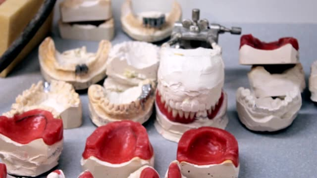 Desk dentist prosthetist, a large number of plug-in jaws video