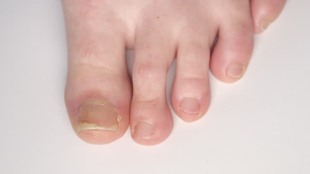 CLOSE UP: Detail of foot with thickening psoriatic toenails of fungus infection