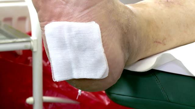 opatrunek do ran w przebiegu stopy cukrzycowej - rana filmów i materiałów b-roll