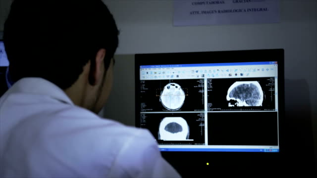 Diagnosing CT of brain on computer video