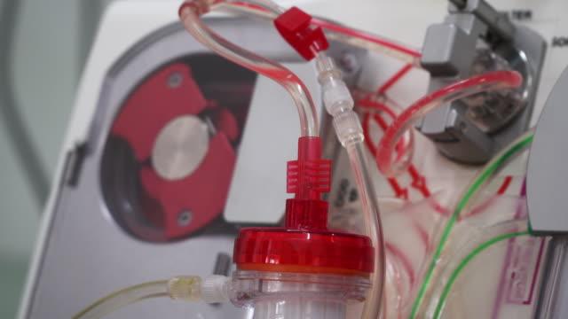 vídeos de stock, filmes e b-roll de diálise - marcapasso cirurgia cardíaca