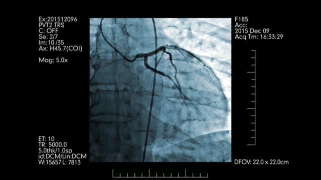 vidéos et rushes de surveillance numérique des navires de coeur   angiographie cardiovasculaire - artériographie