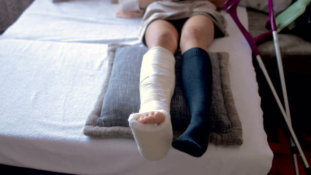 Disabled woman with broken leg and plaster foot at home