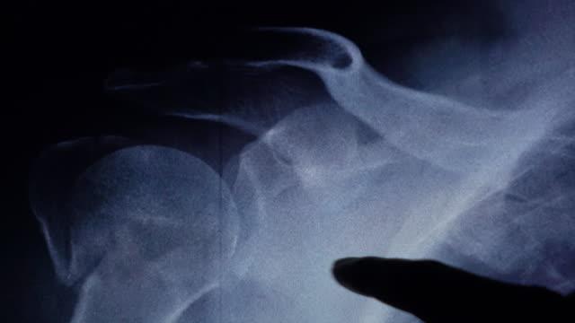 ur led shoulder xray undersöka på tablett - axel led bildbanksvideor och videomaterial från bakom kulisserna