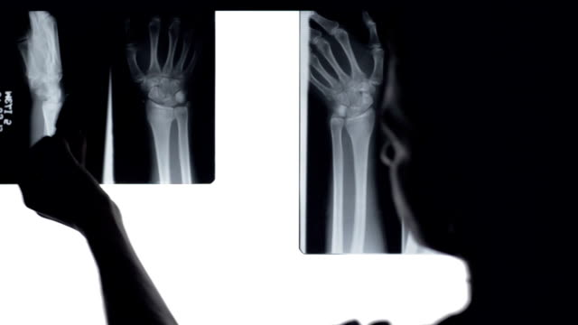 Doctor analyse x rays broken bones. Doctor looking at x-rays of broken wrist in illuminated panel. x ray image stock videos & royalty-free footage