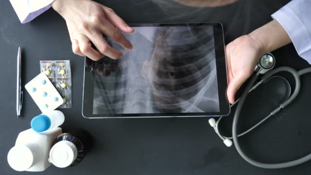 Doctor Analyzing x-ray images on Tablet PC