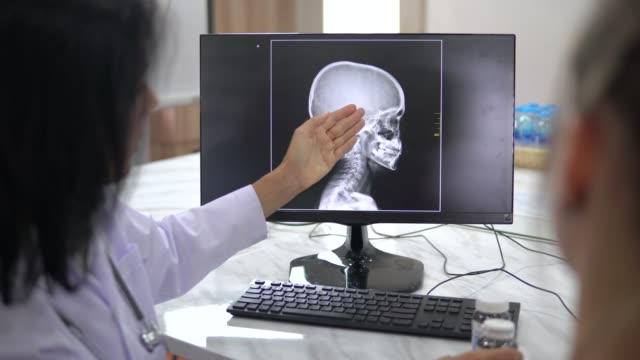 Doctor and patient talking with x ray film Doctor, Patient, Discussion, Surgeon, Asking,X ray radiologist stock videos & royalty-free footage