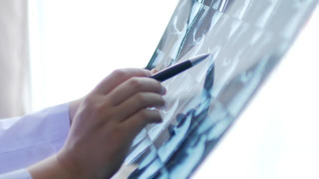 vídeos y material grabado en eventos de stock de comprobación imagen de resonancia magnética (mri) del doctor - columna vertebral humana