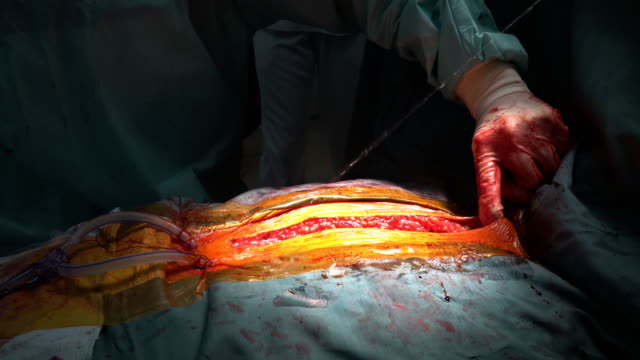 doktor closeup göğüs cerrahisi sonrası - sütür eklem stok videoları ve detay görüntü çekimi
