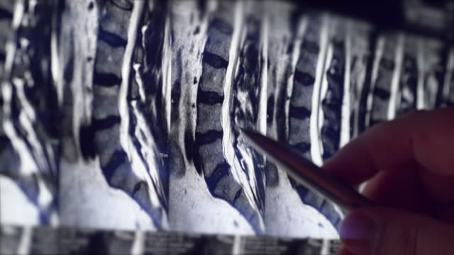 Doctor examines MRI of lumbar spine with pinched discs of spine and nerves, points at problem areas by pen, close-up video