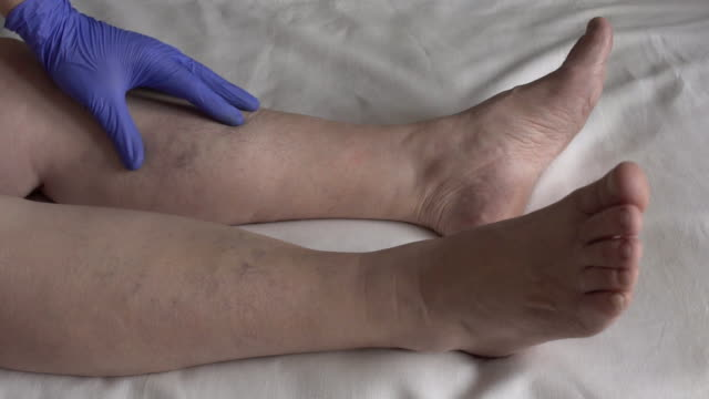 Doctor examines the legs of a female patient whose varicose veins and thrombophlebitis, slow motion Doctor examines the legs of a female patient whose varicose veins and thrombophlebitis, slow motion, phlebeurysm blood clot stock videos & royalty-free footage