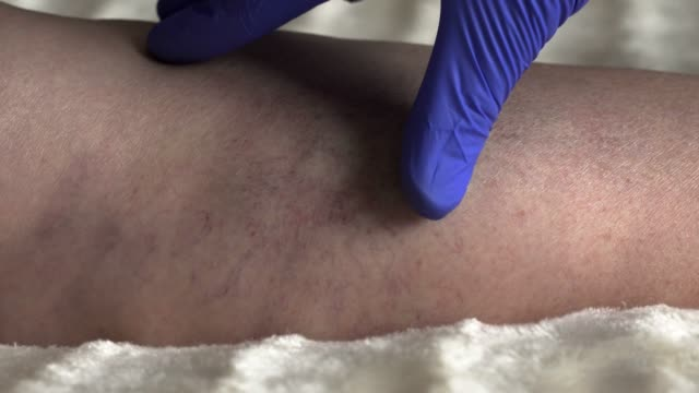Doctor examines the legs of a female patient whose varicose veins and thrombophlebitis Doctor examines the legs of a female patient whose varicose veins and thrombophlebitis, varicose blood clot stock videos & royalty-free footage