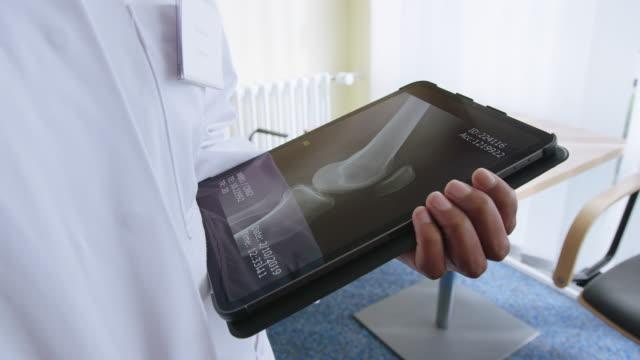vídeos y material grabado en eventos de stock de médico examinando la radiografía de las extremidades en la tableta digital - rayos x