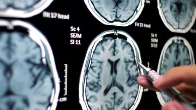 vidéos et rushes de docteur examinant sur le cerveau radiographie - tomographie