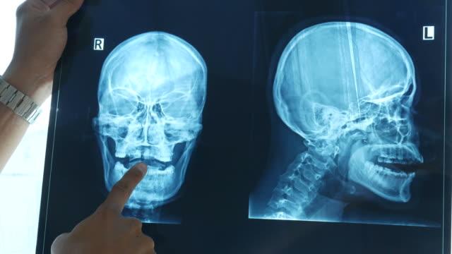 Doctor examining skull scan on x-ray film video