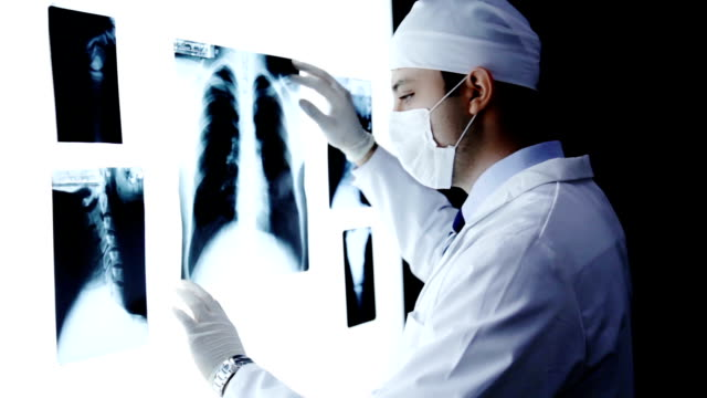 Doctor Examining X ray Searching Diagnosis video