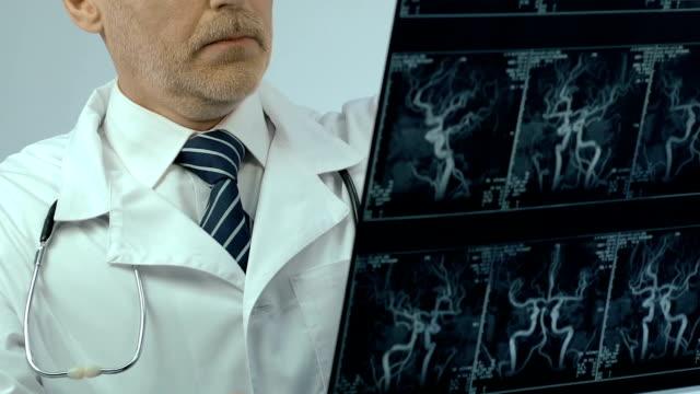 vídeos de stock e filmes b-roll de doctor examining x-ray of vessels, early diagnosis, thinking over treatment - sistema nervoso humano