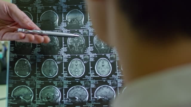 vídeos de stock e filmes b-roll de doctor explaining ct scan of brain - tumor cerebral