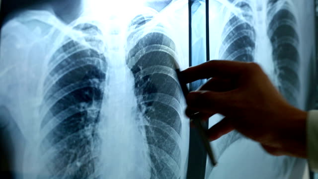 stockvideo's en b-roll-footage met doctor holding pen point x-ray film - longen
